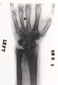 Suposto raio-x da mão de Houdini com a bala alojada, fruto de um acidente com o truque de pegar a bala.(Clique na imagem para ampliá-la)